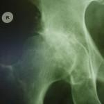 Kolk - rentgenska slika